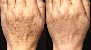 Age Spots Before and After Using Meladerm