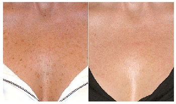 Liver Spots Before and After Using Meladerm