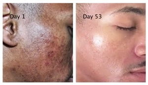 Hyperpigmentation Before and After Using Melasma