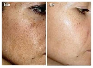 Melasma Befor and After Using Meladerm